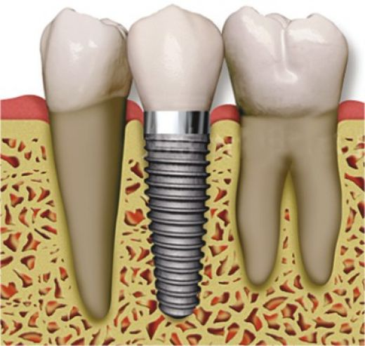 dental_implant_01.jpg